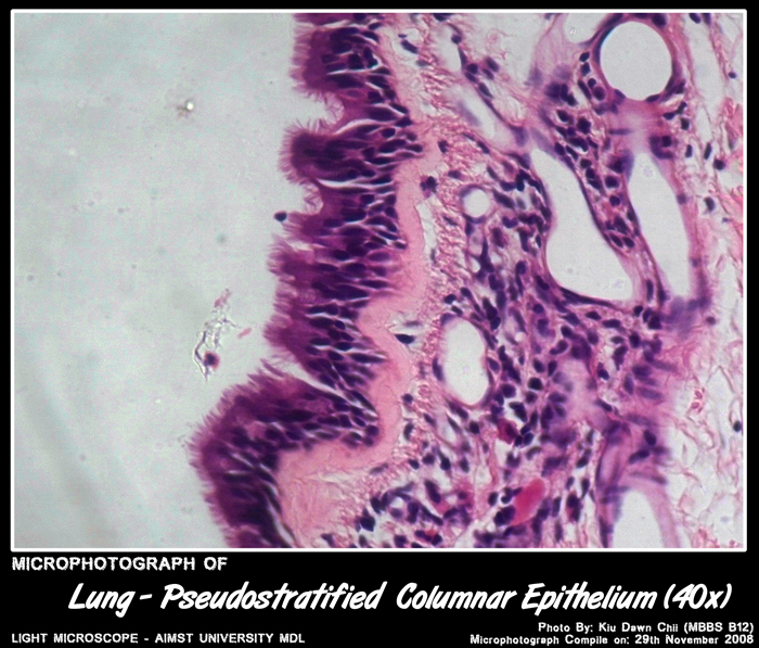Micro-photograph of Pseudostratified Columnar Epithelium under light microscope magnification 40x